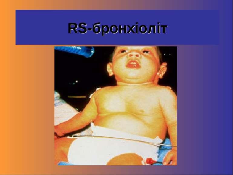 RS-бронхіоліт