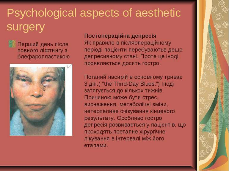 Psychological aspects of aesthetic surgery Перший день після повного ліфтингу...