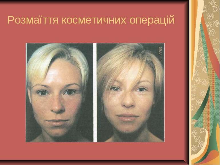 Розмаїття косметичних операцій