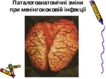 Паталогоанатомічні зміни при менінгококовій інфекції