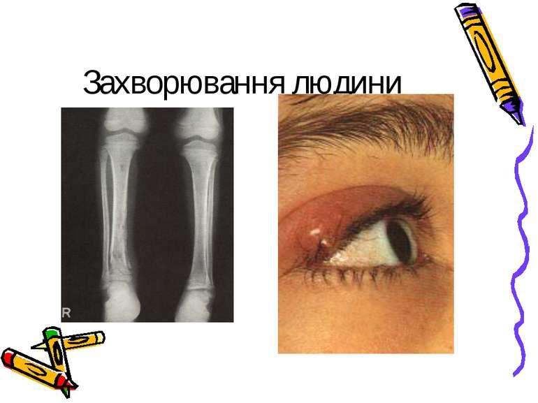 Захворювання людини