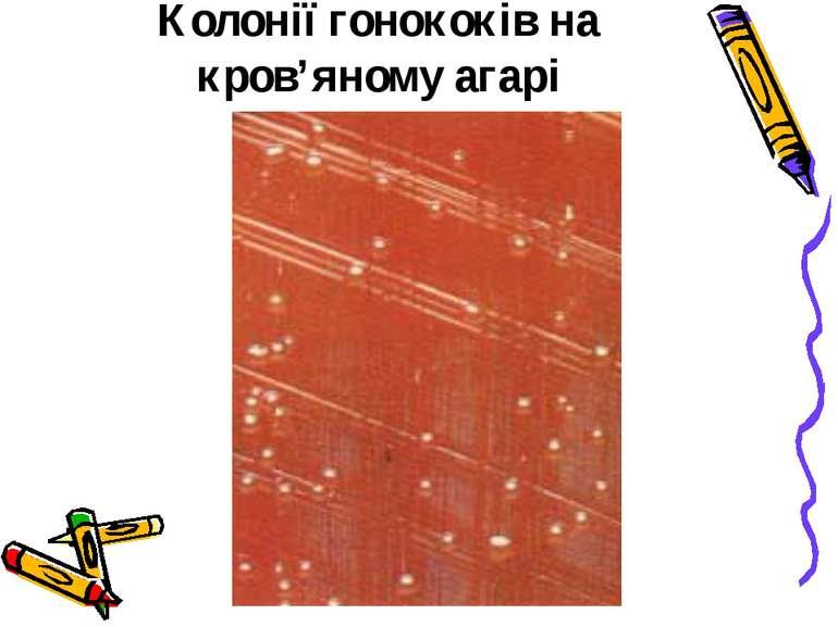 Колонії гонококів на кров'яному агарі