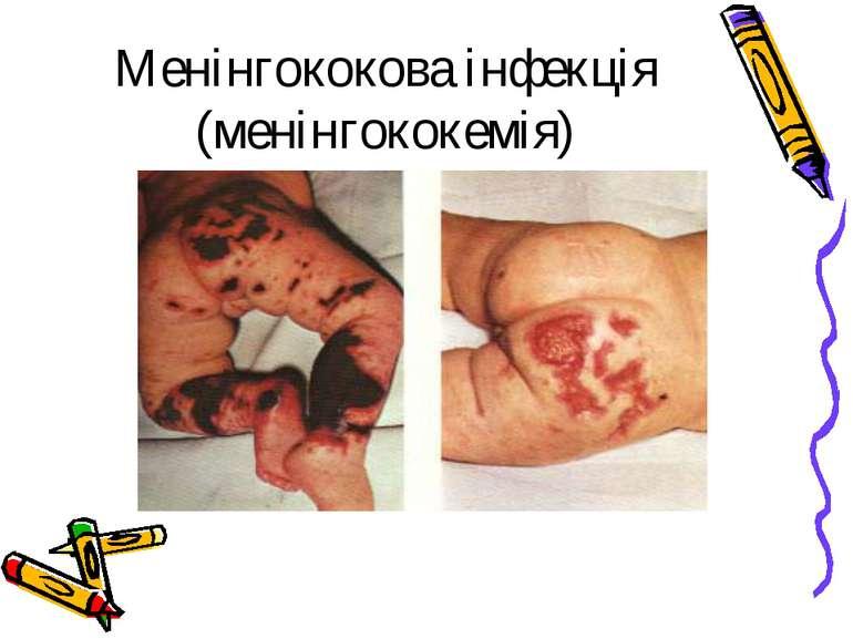 Менінгококова інфекція (менінгококемія)
