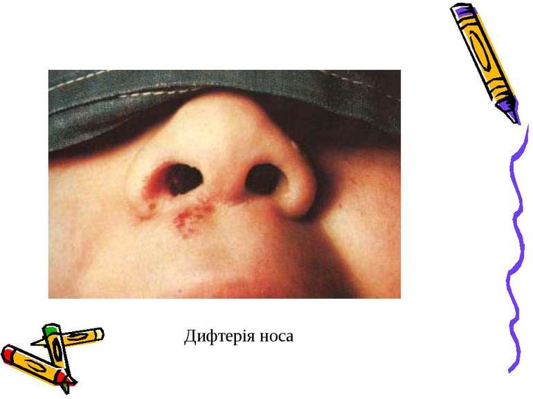 Дифтерія носа