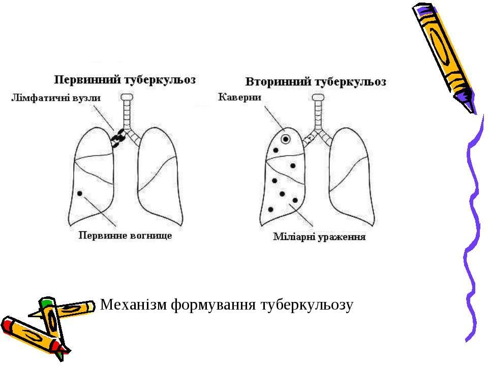 Механізм формування туберкульозу