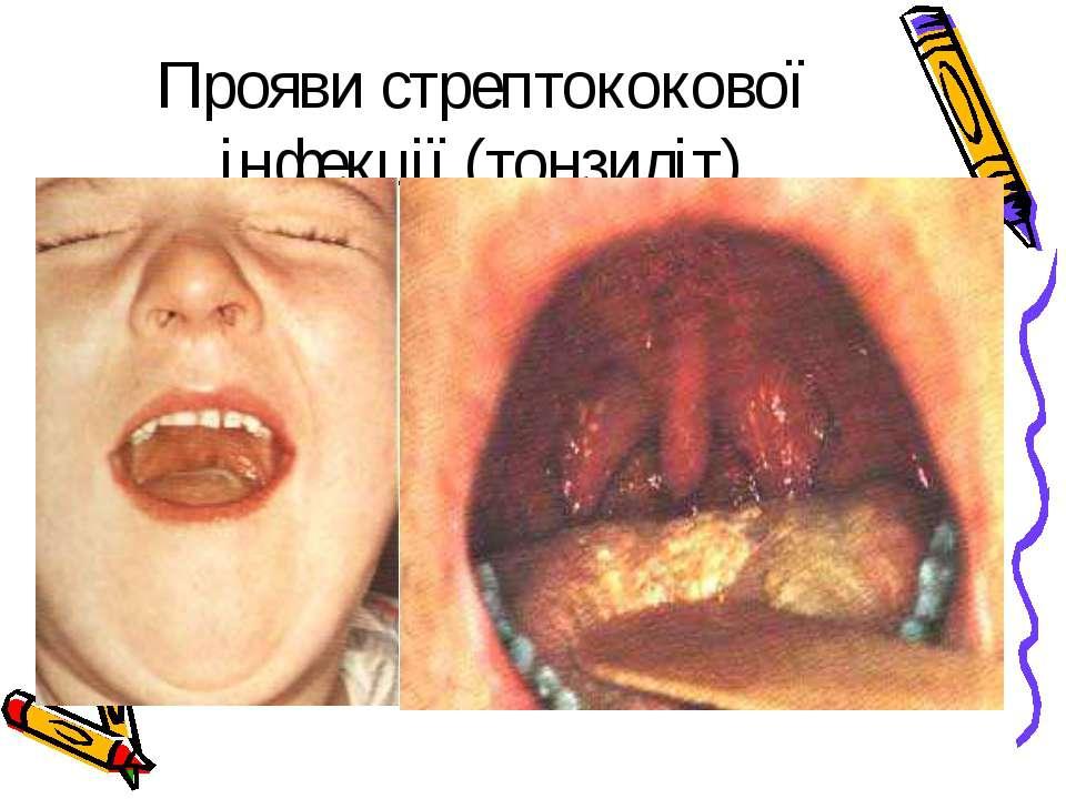 Прояви стрептококової інфекції (тонзиліт)