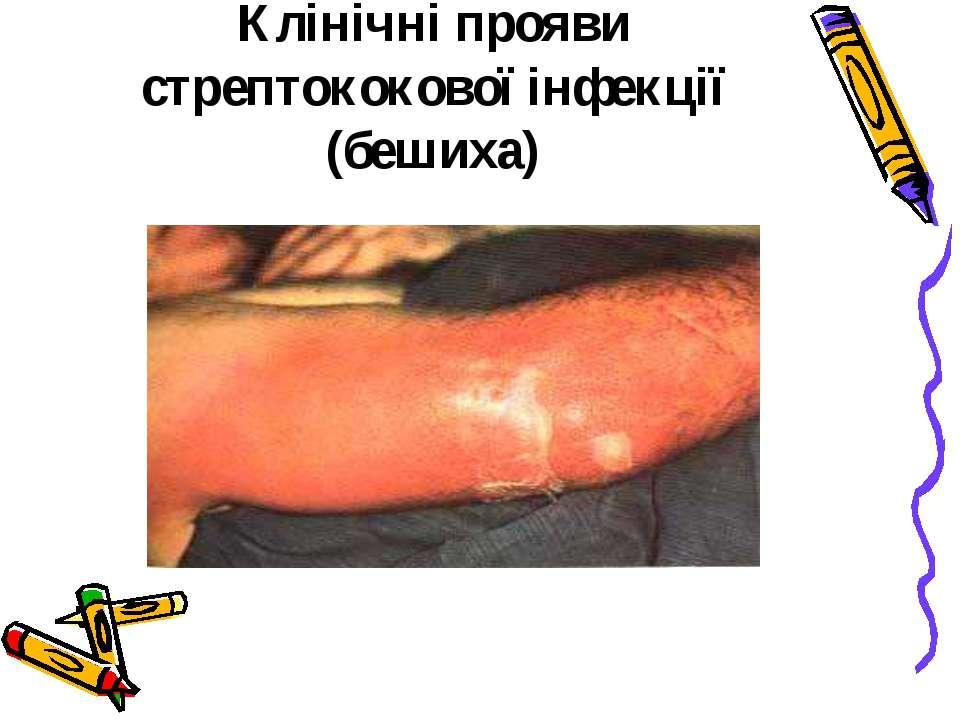 Клінічні прояви стрептококової інфекції (бешиха)