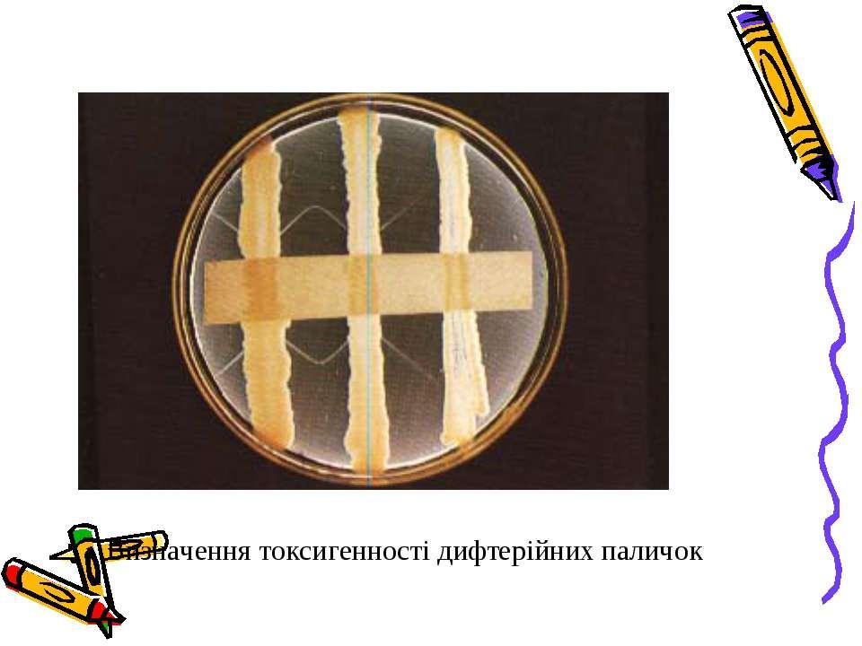 Визначення токсигенності дифтерійних паличок
