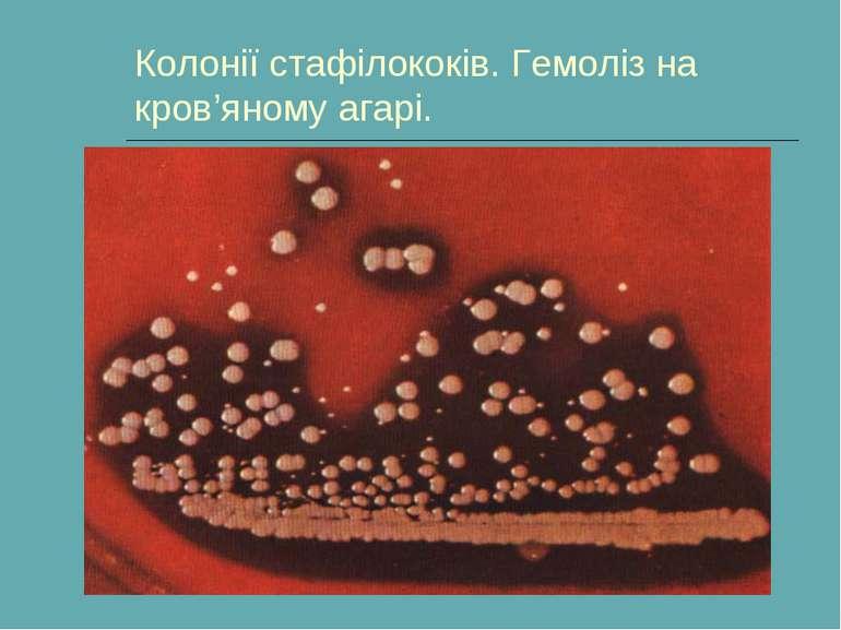 Колонії стафілококів. Гемоліз на кров'яному агарі.