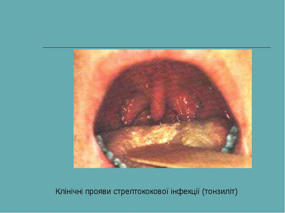 Клінічні прояви стрептококової інфекції (тонзиліт)
