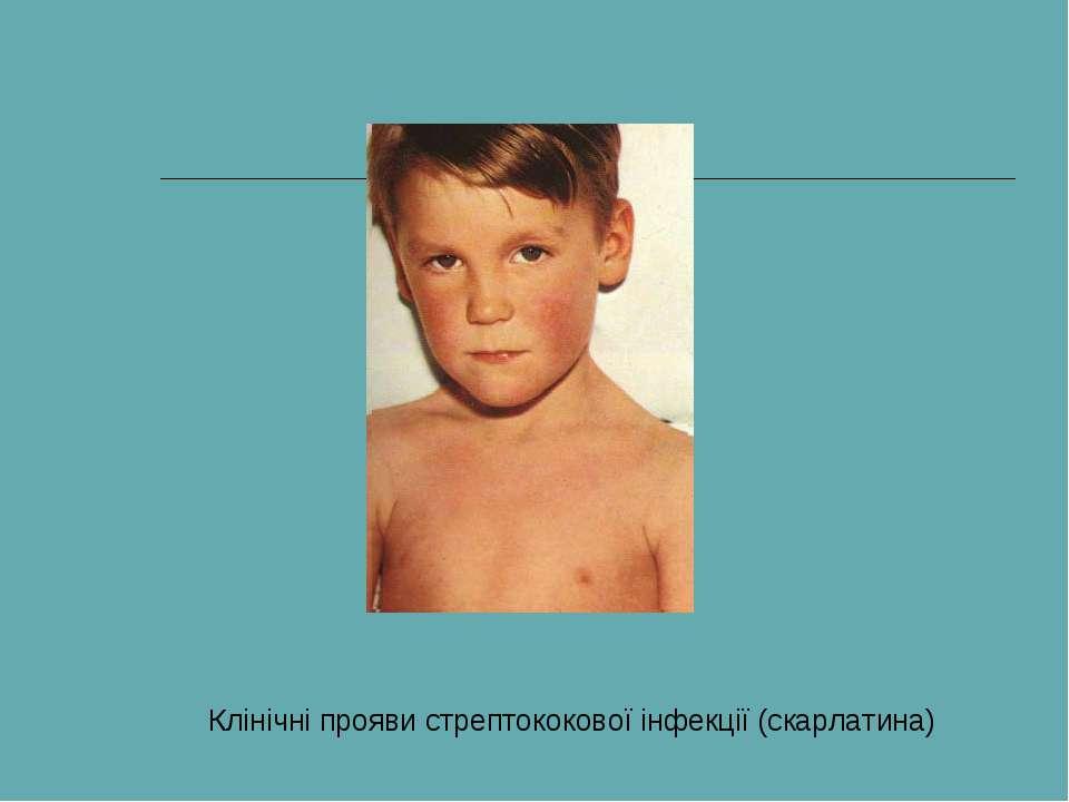 Клінічні прояви стрептококової інфекції (скарлатина)