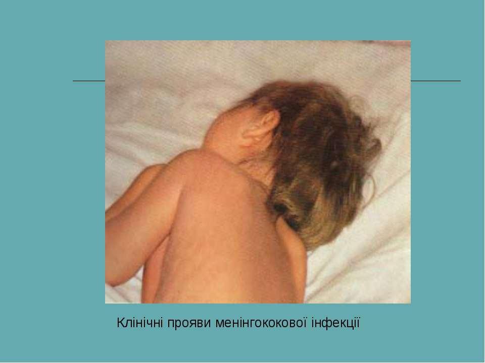 Клінічні прояви менінгококової інфекції