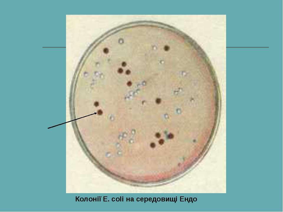 Колонії E. coli на середовищі Ендо