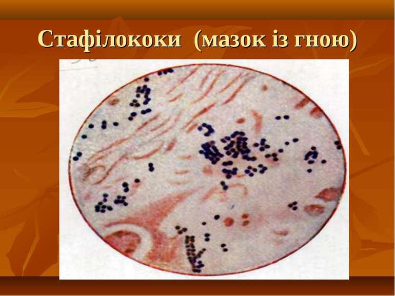Стафілококи (мазок із гною)