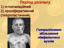 Період розпалу 1) інтоксикаційний 2) проліферативний (гіперпластичний) Генера...