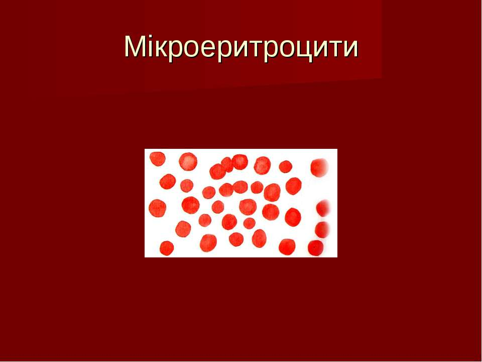 Мікроеритроцити