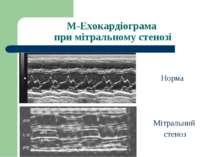 М-Ехокардіограма при мітральному стенозі Мітральний стеноз Норма