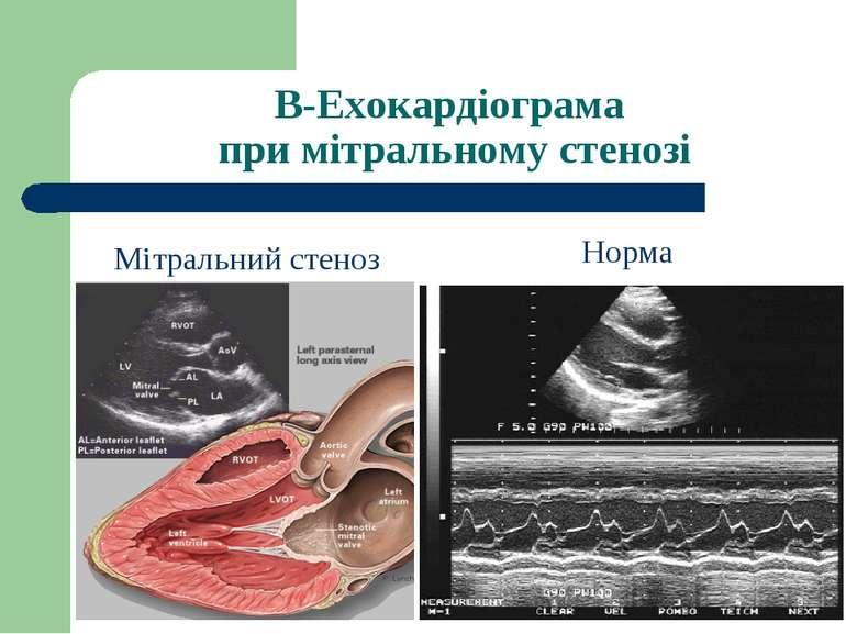 В-Ехокардіограма при мітральному стенозі Норма Мітральний стеноз
