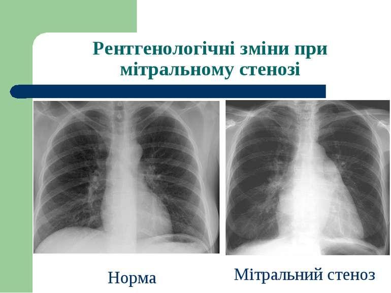 Рентгенологічні зміни при мітральному стенозі Норма Мітральний стеноз