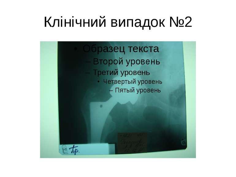 Клінічний випадок №2