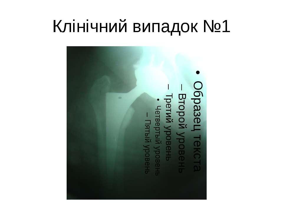 Клінічний випадок №1