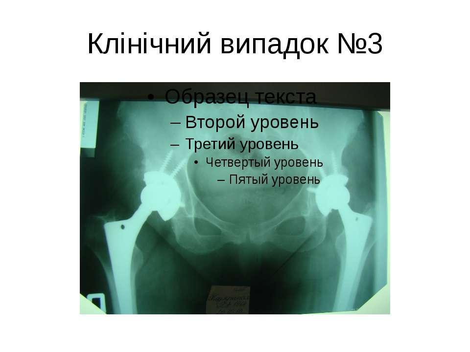 Клінічний випадок №3
