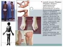 повний синдром Марфана (Марфана синдром) характеризується арахнодактілією, ра...