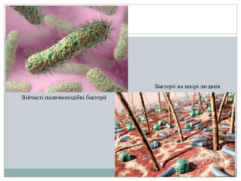Війчасті паличкоподібні бактерії Бактерії на шкірі людини