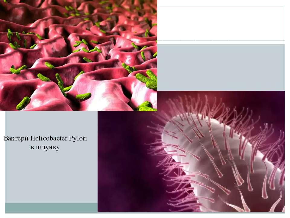 Бактерії Helicobacter Pylori в шлунку