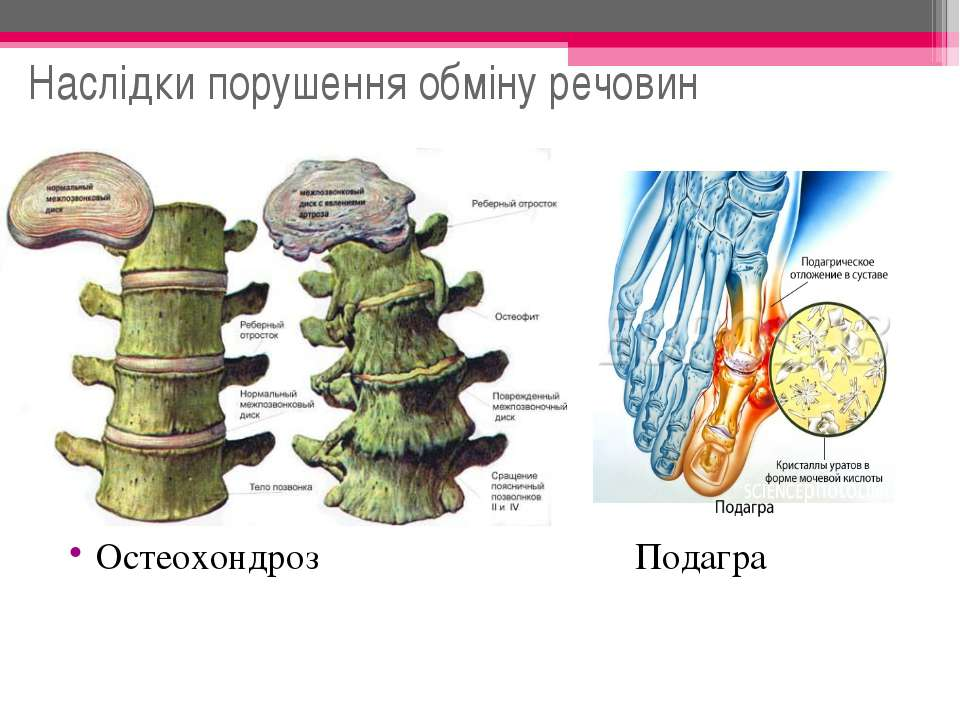 Наслідки порушення обміну речовин Остеохондроз Подагра