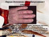 Перша допомога при обмороженні І ступеня Потрібно негайно зігріти потерпілого...