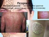 Псоріа з (лускатий лишай) — неінфекційне хронічне захворювання; дерматоз, щ...