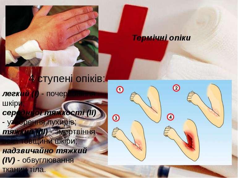 Термічні опіки 4 ступені опіків: легкий (І) - почервоніння шкіри; середньої т...