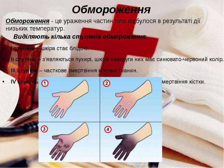 Обмороження Виділяють кілька ступенів обмороження: І ступінь – шкіра стає блі...