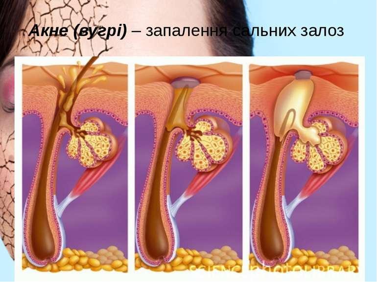 Акне (вугрі) – запалення сальних залоз