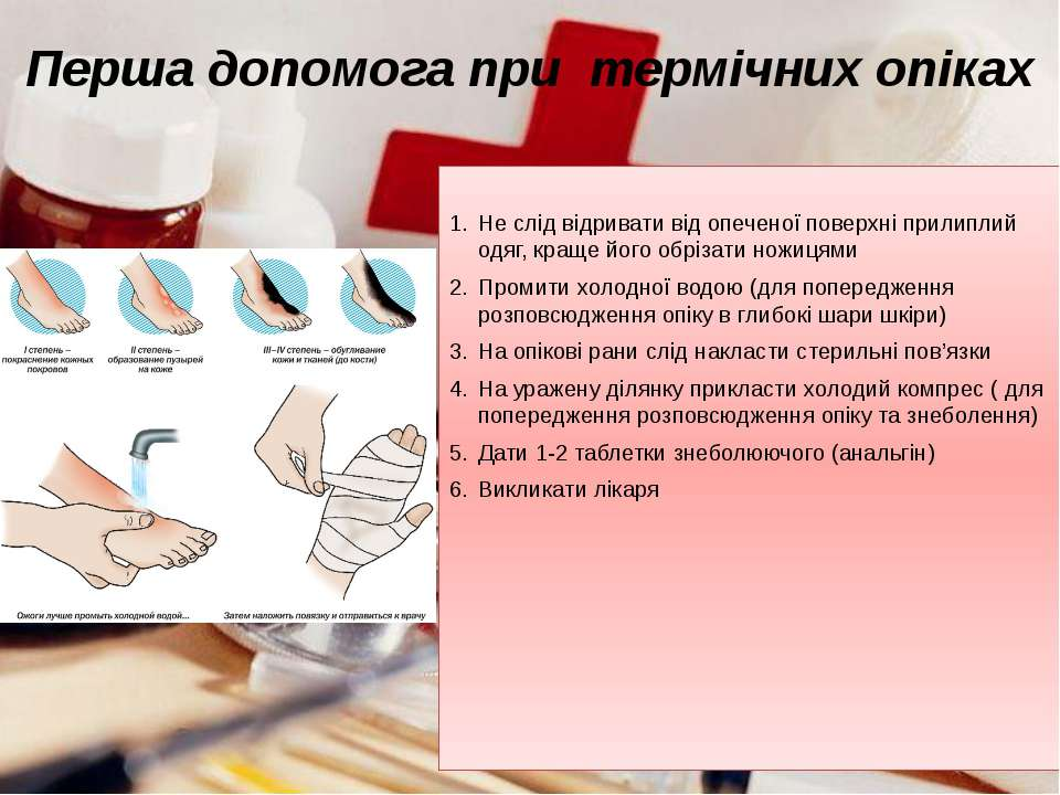 Не слід відривати від опеченої поверхні прилиплий одяг, краще його обрізати н...