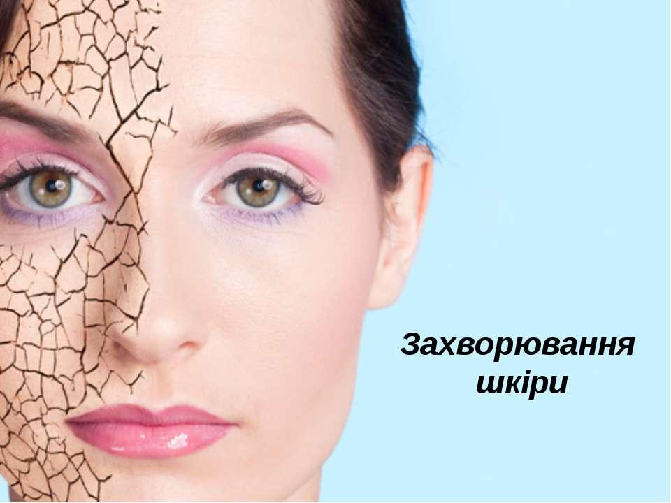 Захворювання шкіри