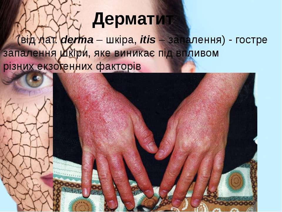 Дерматит (від лат. derma – шкіра, itis – запалення) - гостре запалення шкіри...