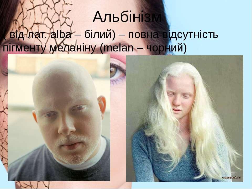 Альбінізм ( від лат. alba – білий) – повна відсутність пігменту меланіну (mel...