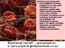 В результаті протікання коагуляційного механізму утворюється згусток крові. Т...