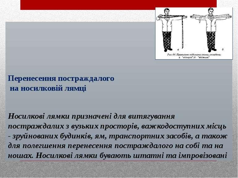 Перенесення постраждалого на носилковій лямці Носилкові лямки призначені для ...