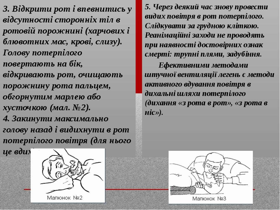 3. Відкрити рот і впевнитись у відсутності сторонніх тіл в ротовій порожнині ...
