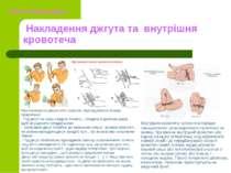 Накладення джгута та внутрішня кровотеча Внутрішню кровотечу зупинити в поряд...