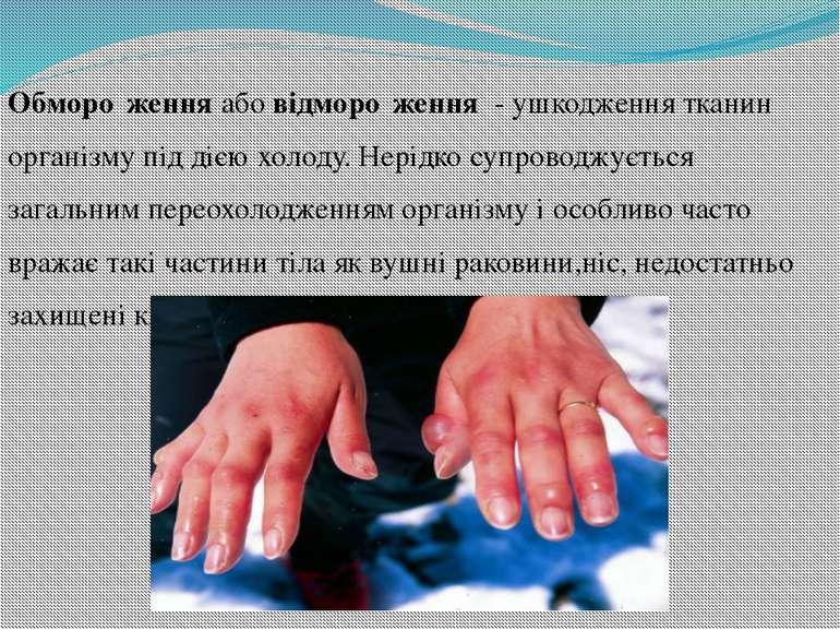 Обморо женняабовідморо ження - ушкодженнятканин організму під дієюхолод...