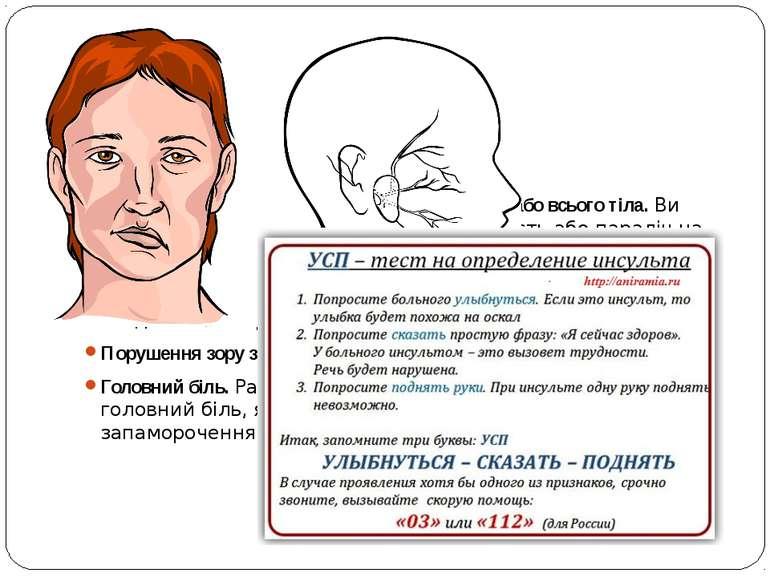 Симптоми інсульту Порушення ходи. Порушення мови і розуміння слів. Параліч аб...