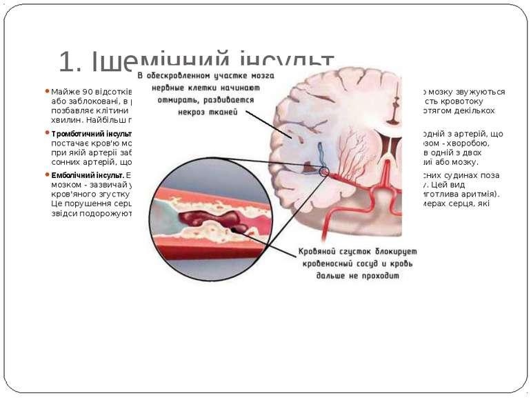 1. Ішемічний інсульт Майже 90 відсотків інсультів - ішемічні інсульти. Вони в...