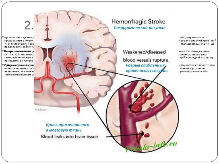 2. Геморагічний інсульт Крововилив - це медичний термін для кровотечі. Гемора...
