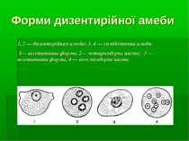 Форми дизентирійної амеби 1, 2 — дизентерійная амеба; 3, 4 — симбіотична амеб...