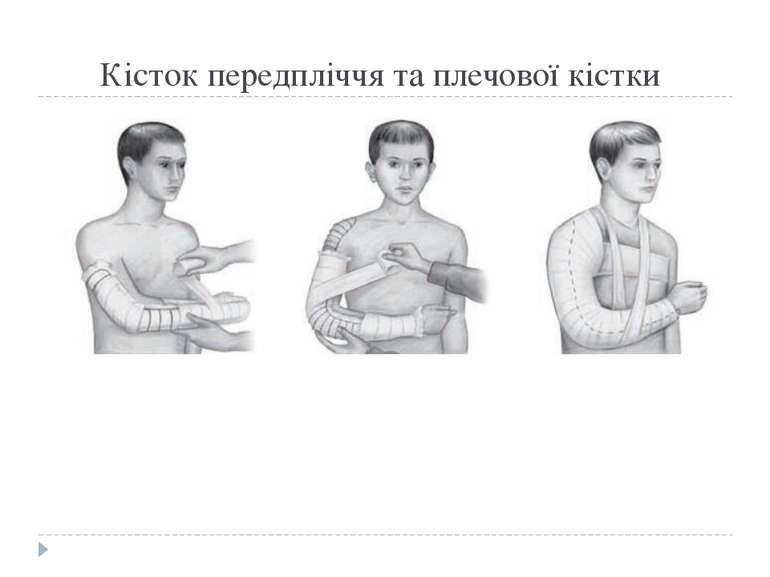Кісток передпліччя та плечової кістки