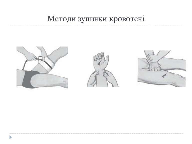 Методи зупинки кровотечі